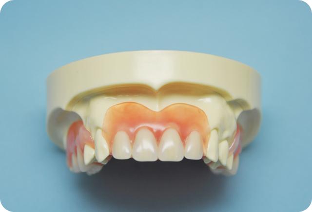 エール歯科アゴに優しい柔らかい入れ歯