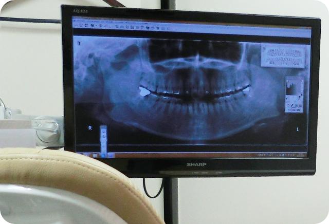 エール歯科クリニックの歯科口腔外科