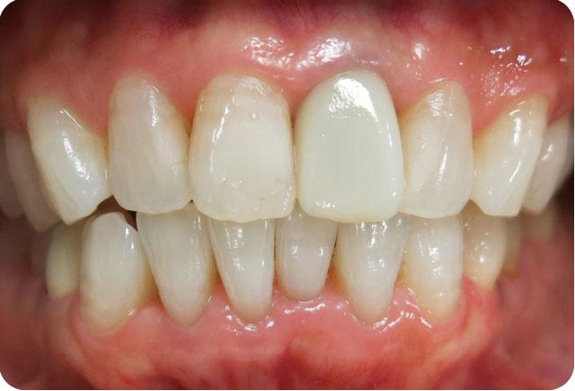 美しい歯並びは自信につながります。天王台 エール歯科クリニック