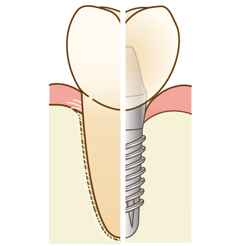 インプラントと天然歯の違い